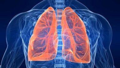 mesotelioma--malattie-amianto-correlate